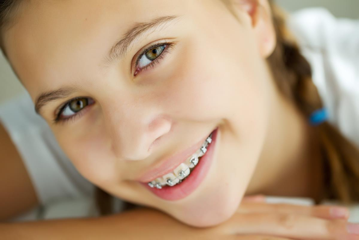 orthodontic services Palm Beach Gardens, FL
