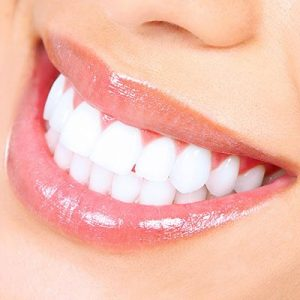 GLO™ Teeth Whitening in Palm Beach Gardens, FL